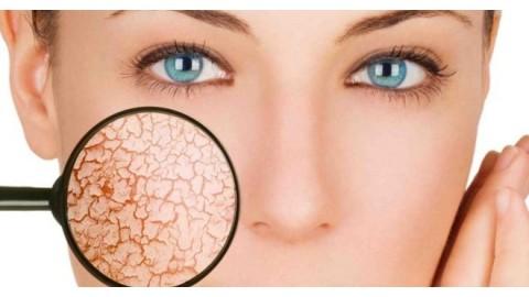 Почему шелушится кожа? - Рекомендации врачей-дерматологов.